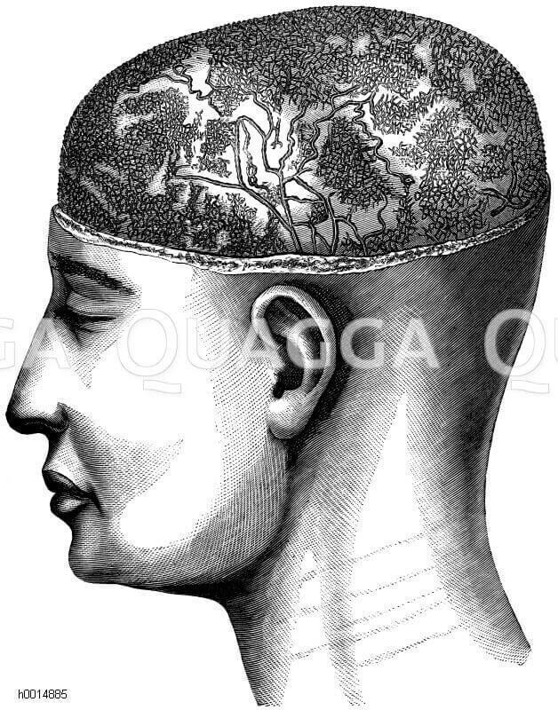 Mensch: Gehirn. Mit Quecksilber injizierte Lymphgefäße der Schädeldecke, die äußere Kopfhaut ist skalpartig abgetragen